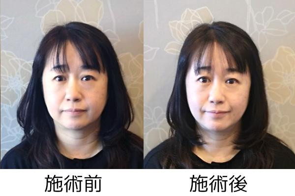 美容鍼 そごう横浜