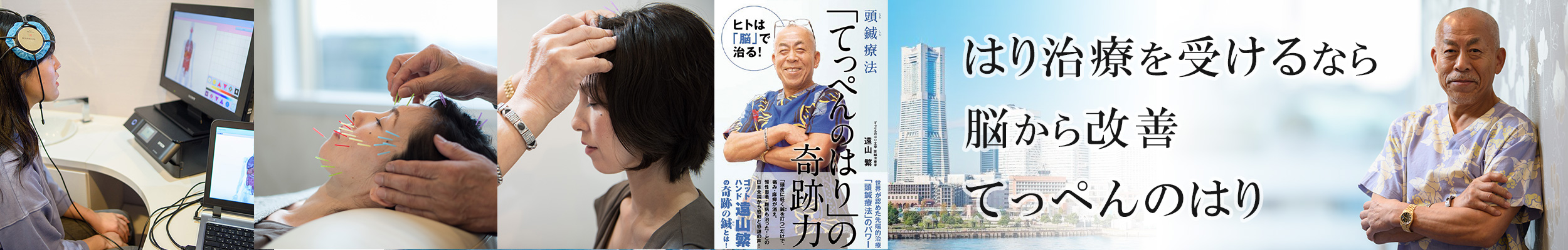 YNSA頭鍼&美容鍼 てっぺんのはり そごう横浜店