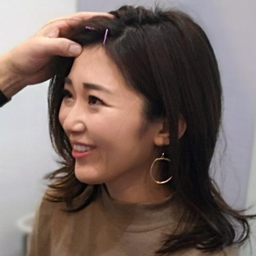 YNSA頭鍼